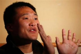 Jia Jingchuan, one of the poisoned workers, shows the swelling of his hands caused by exposure to n-hexane, a poisonous chemical WinTek used to make touch screens for Apple.
